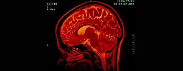 A PRD brain scan